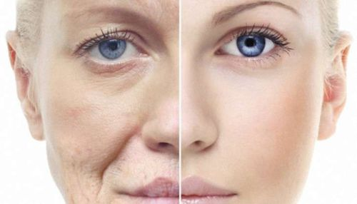 anti-aging-treatment-lead_730x419